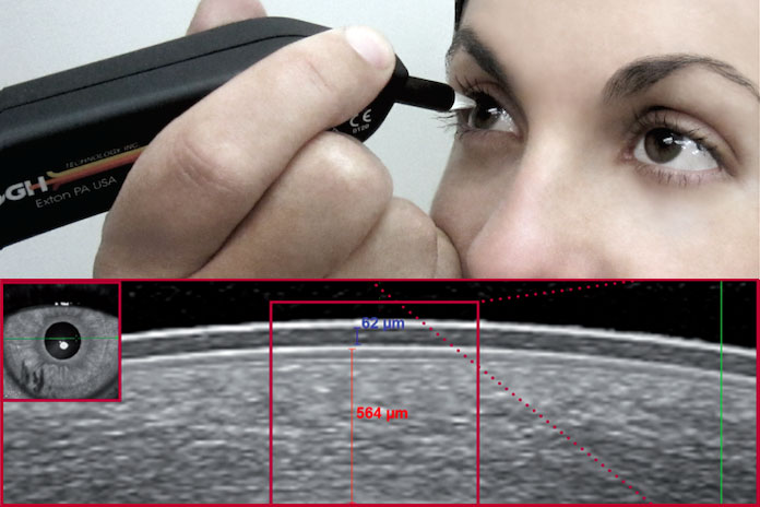 Corneal Pachymetry