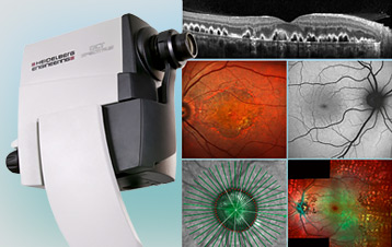 Retinal Screening